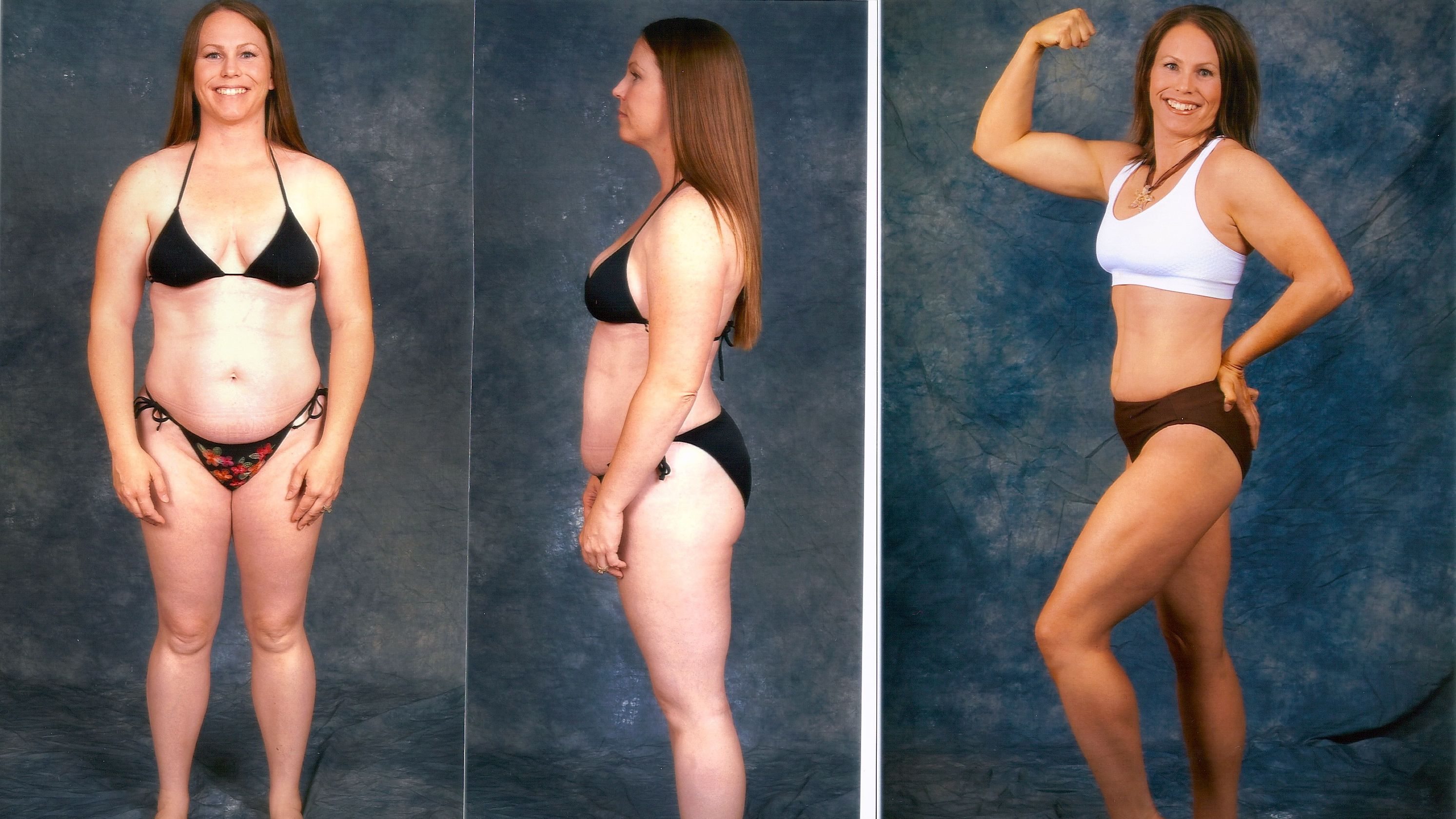 Low Cost Weight loss Surgery in India  Forerunners Healthcare